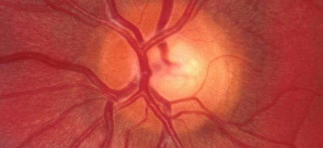 Selective Laser Trabeculoplasty (SLT) for Glaucoma